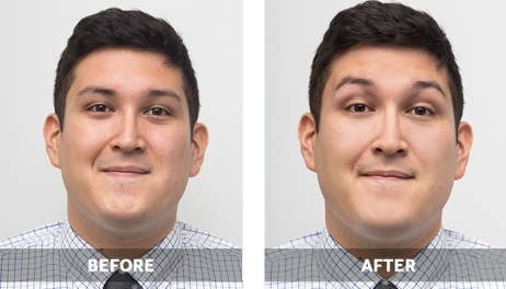 MensBBCream_BeforeAfter_05_700x400